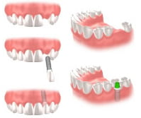 Hall Periodontics Traverse City Dental Implants
